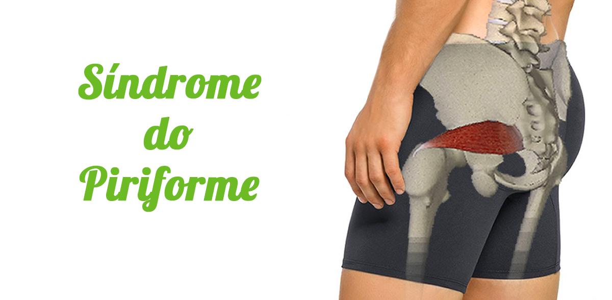 sindrome do piriforme
